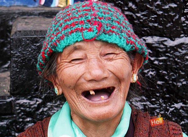 Щекоточный смех способствует регуляции многих функций в организме